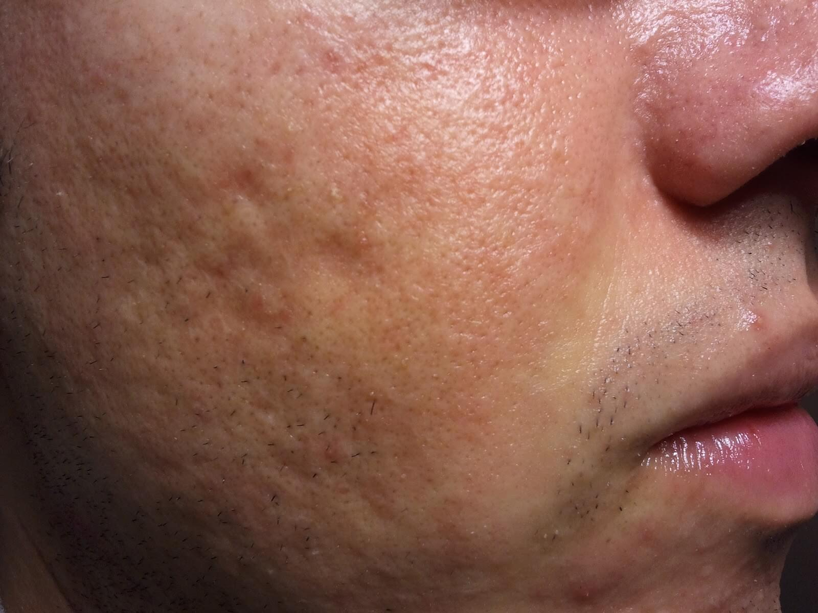 Large Visible Pores